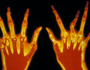 x-ray-of-hands-with-rheum-011